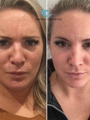 Before and After with Botox to scowl