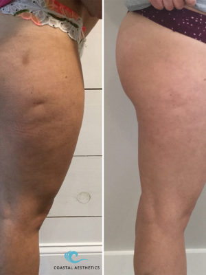 Before and After Photo Gallery Medical Spa