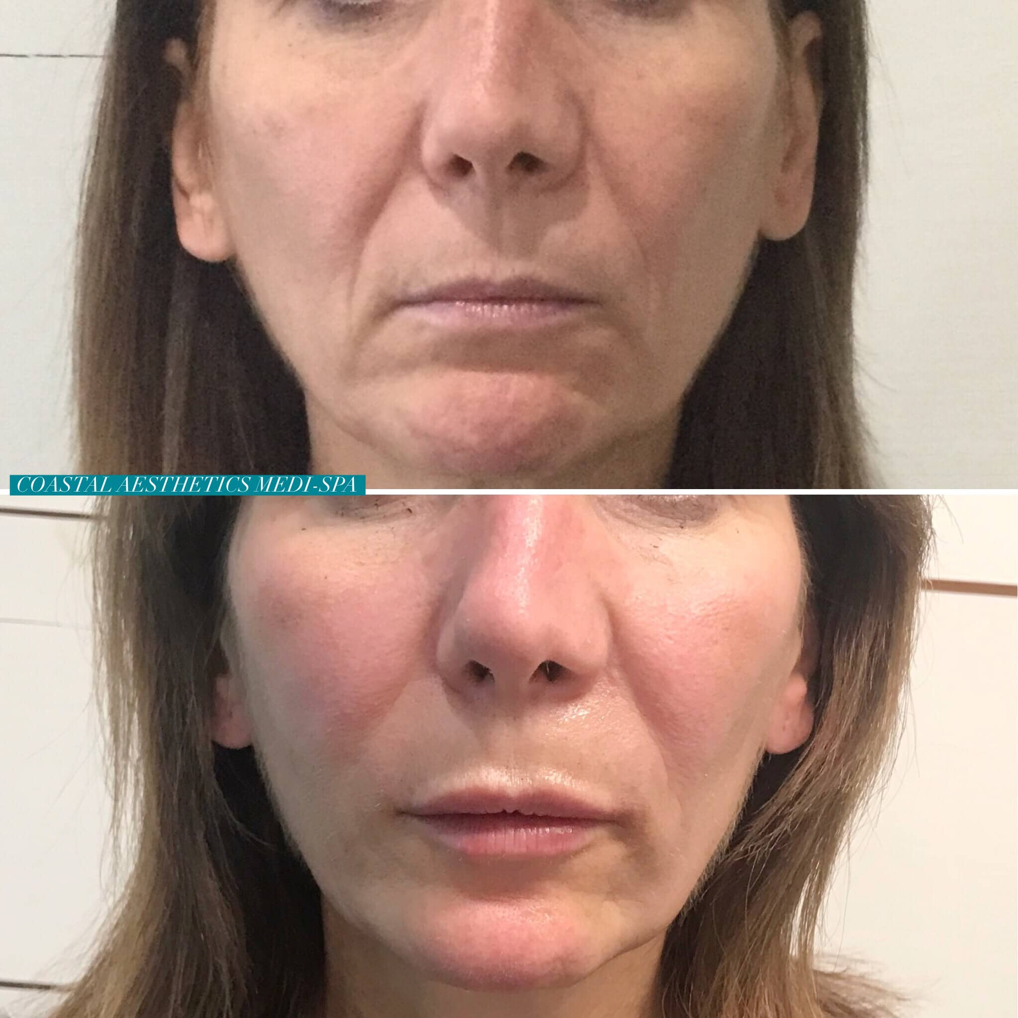 Microneedling in York, Maine | Skin Rejuvenation