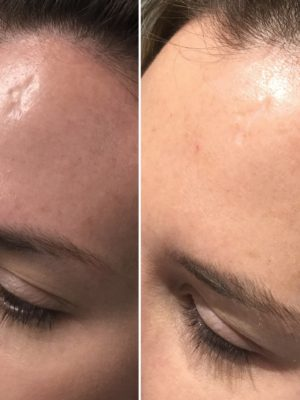 After 4 treatments of Accent Prime Pixel RF for scar removal to forehead.  Results may vary.