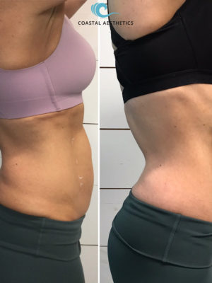 Before and After Photo Gallery TruSculpt Maine Medical Spa